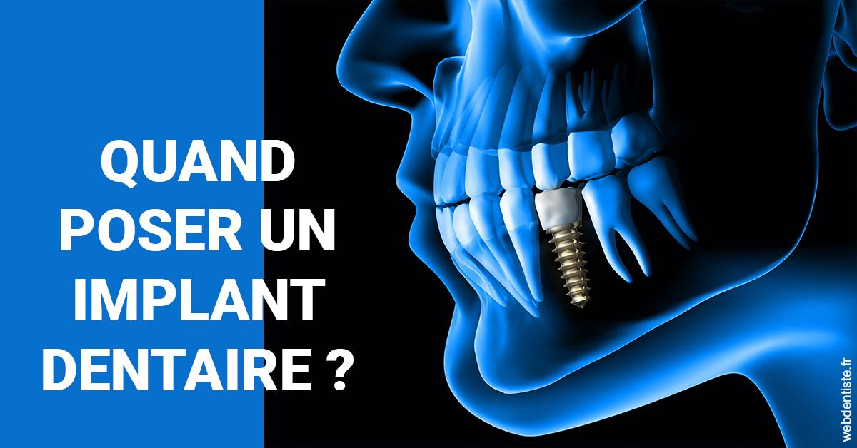 https://dr-laulhere-vigneau-jean-marc.chirurgiens-dentistes.fr/Les implants 1